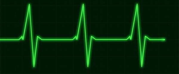 pulse-monitor